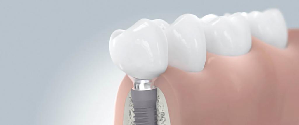 Praxis_Jordan_Behandlung_Implantatprothetik_1500